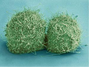 Брокколи полезна против рака